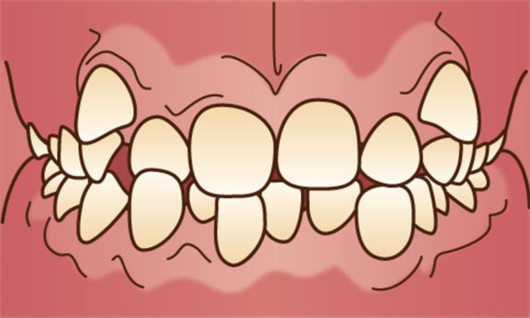 歯がでこぼこ……